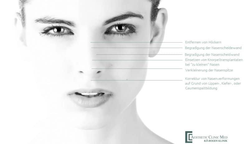 Nasenkorrektur und Nasenverkleinerungen in Düsseldorf